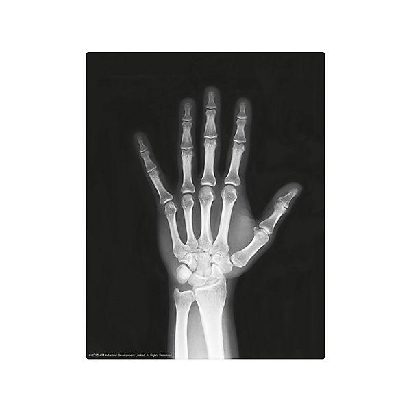"""Набор """"Юный врач. Скелет человека"""""""